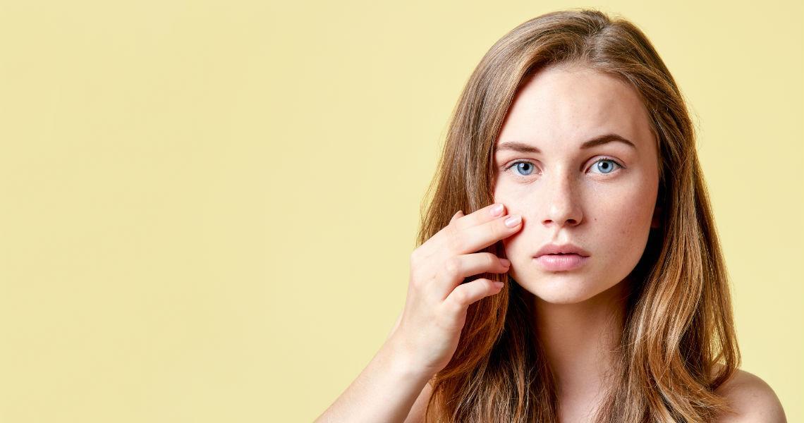 Cómo evitar las manchas en la piel