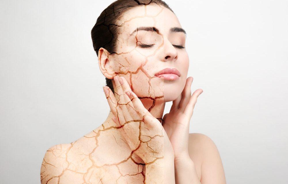Recomendaciones para cuidar la piel seca
