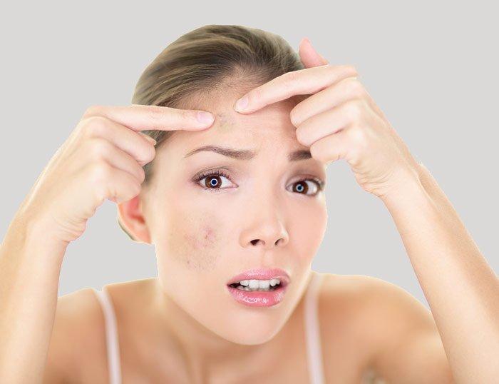 Como deshacerse de las manchas en la cara