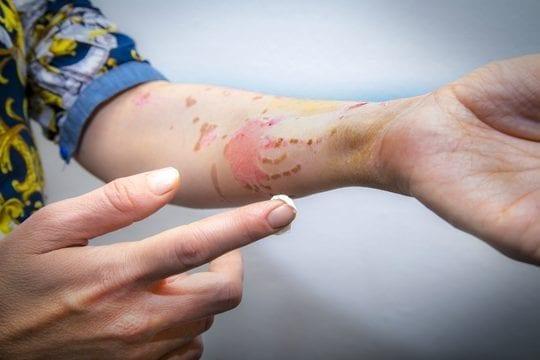 ¿Cuándo aplicar crema cicatrizante?