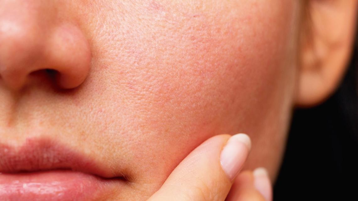 Remedios caseros contra la sequedad de la piel