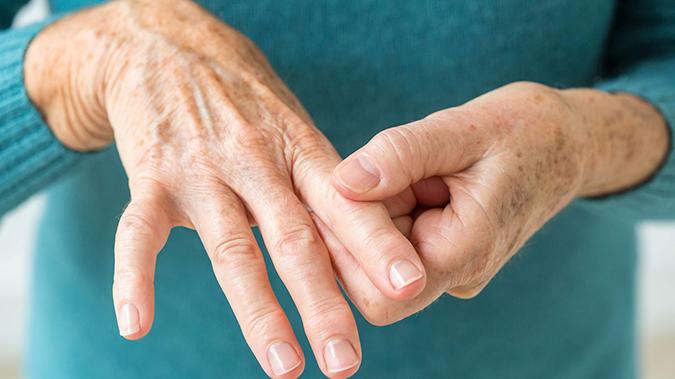que sabes de la artritis